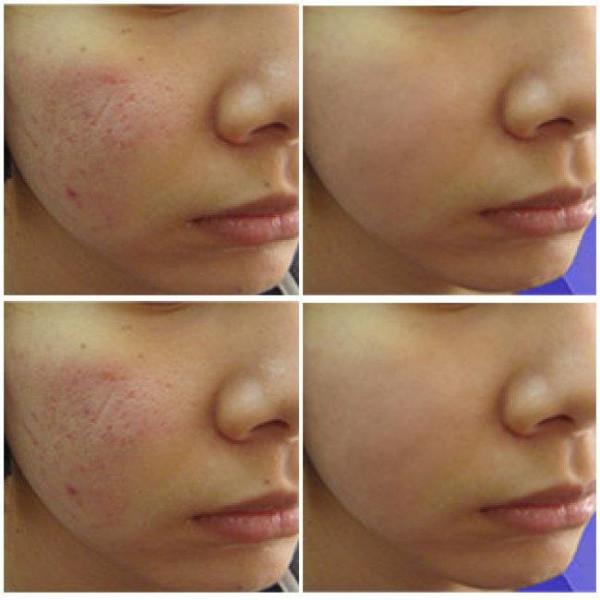 Các phương pháp điều trị sẹo