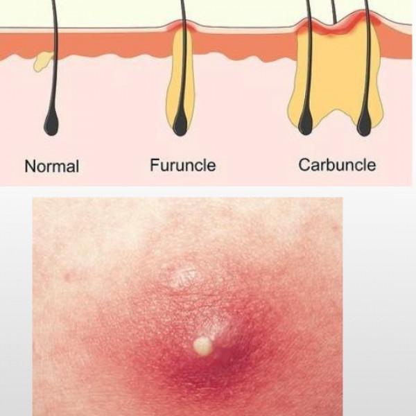 Nhiễm trùng nang lông